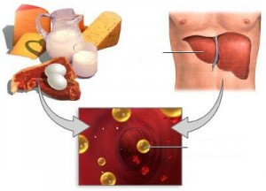 trigliceridi alti i sintomi sono esterni o interni?