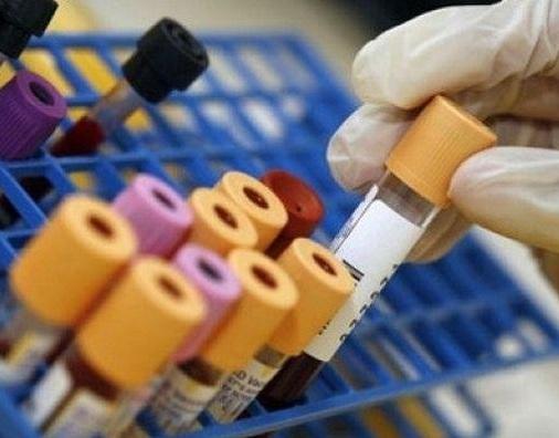 bassi livelli di colesterolo complicanze