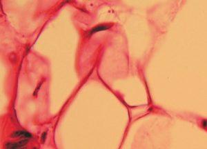 Triacilglicerolo lipasi adipocitaria
